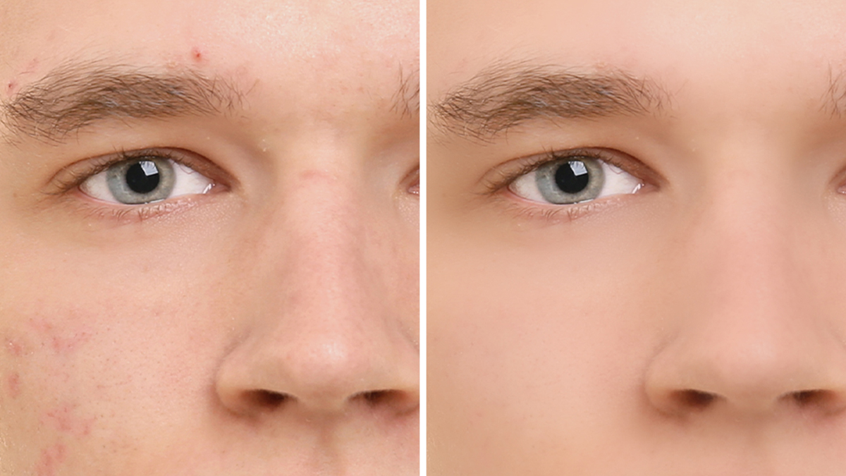 A comparison between a blemished and a smooth skined man face.