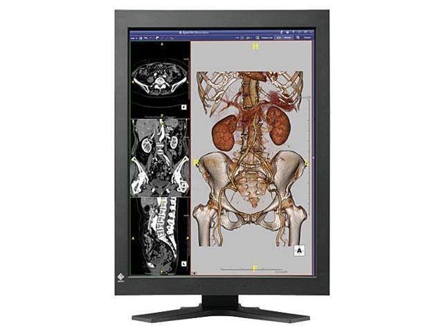 "EIZO Black 21.3"" 17ms LCD Monitor Built-in Speakers"