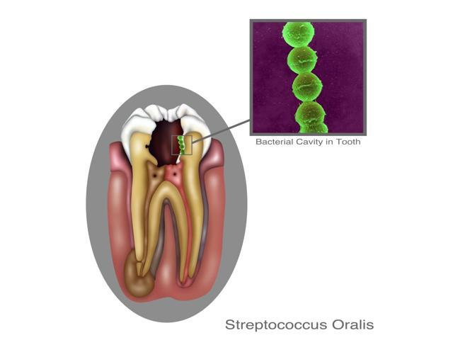 Oral Infection of Streptococcus Oralis Poster Print by Gwen ShockeyScience Source (18 x 24)