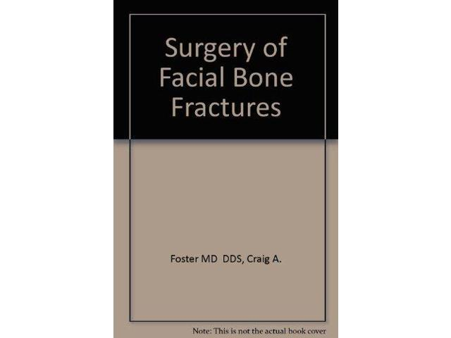 Surgery of Facial Bone Fractures