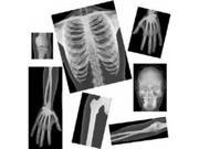 Roylco Real Human X-Rays