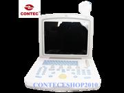 CONTEC 2014 Digital CMS600B3 Portable Ultrasound Scanner Machine,3.5MHZ Convex Probe