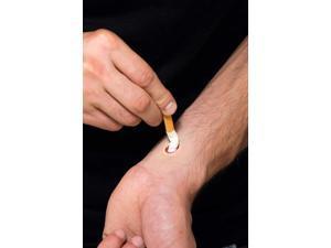 Don Post Cigarette Burn Costume Appliance
