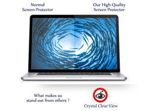 "15"" Anti-Glare Screen Protector Compatible w/ Macbook Pro 15.4"" Retina Display A1398"