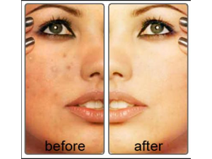RETINOL A CREAM 0.1% 20g Anti Aging/Acne Cream/Wrinkle